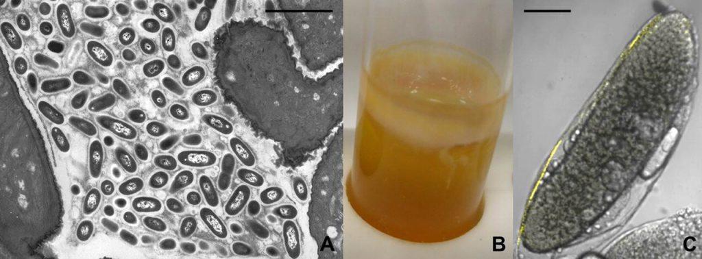 اسید استیک باکتری